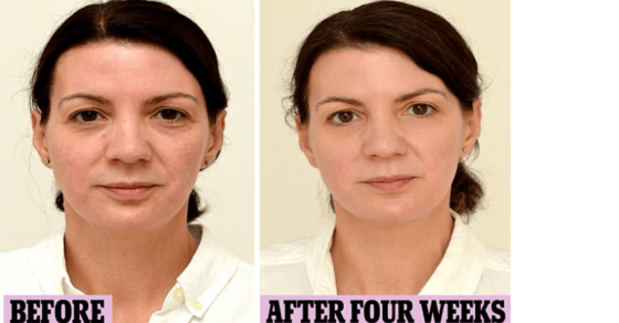 Woman-Drinks-3-Liters-Of-Water-Every-Day